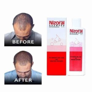 Nizoral Anti Dandruff Shampoo - 50ml 2